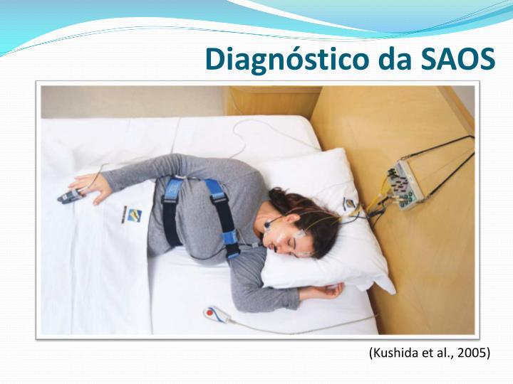 Diagnóstico da SAOS