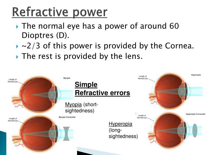 Refractive power