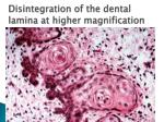 d isintegration of the dental lamina at higher magnification