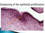 deepening of the epithelial proliferation