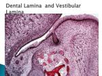 dental lamina and vestibular lamina