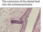 the extension of the dental bud into the ectomesenchyme