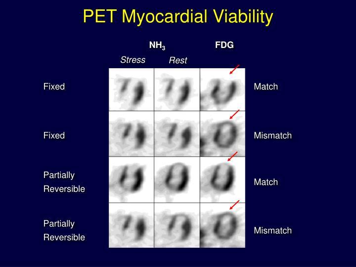 PET Myocardial Viability