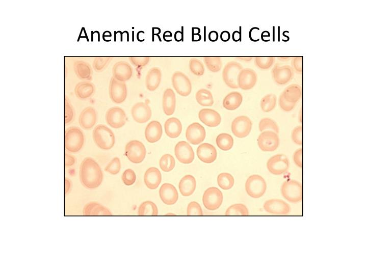 Anemic Red Blood Cells
