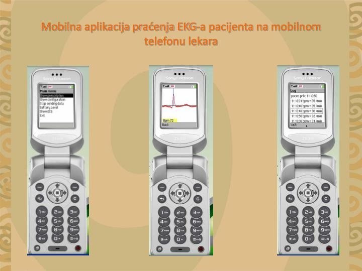 Mobilna aplikacija praćenja EKG-a pacijenta na