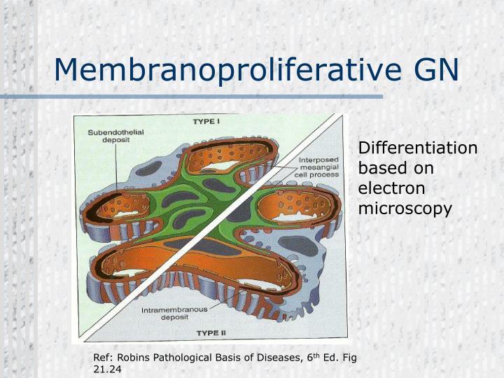 Membranoproliferative GN