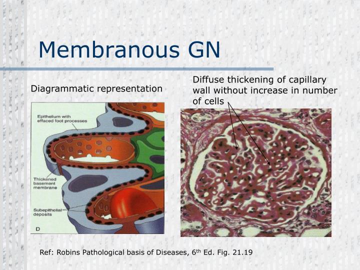 Membranous GN