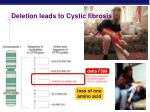 deletion leads to cystic fibrosis
