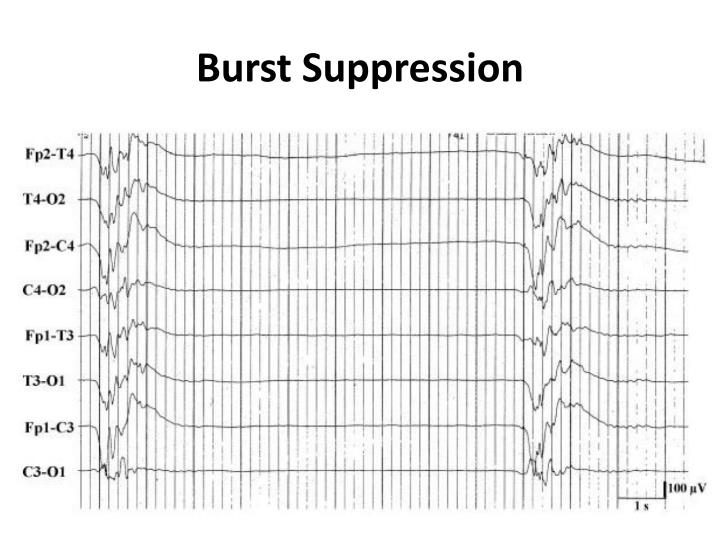 Burst Suppression