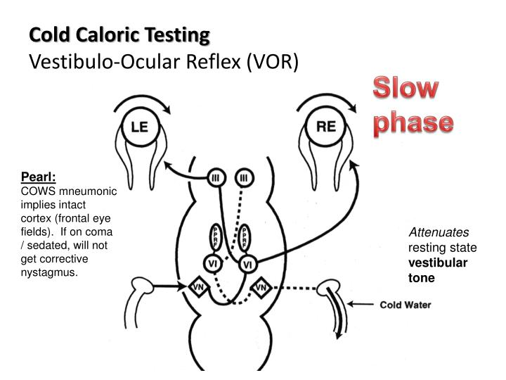 Cold Caloric Testing