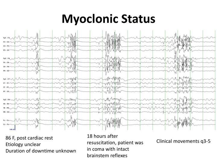 Myoclonic Status