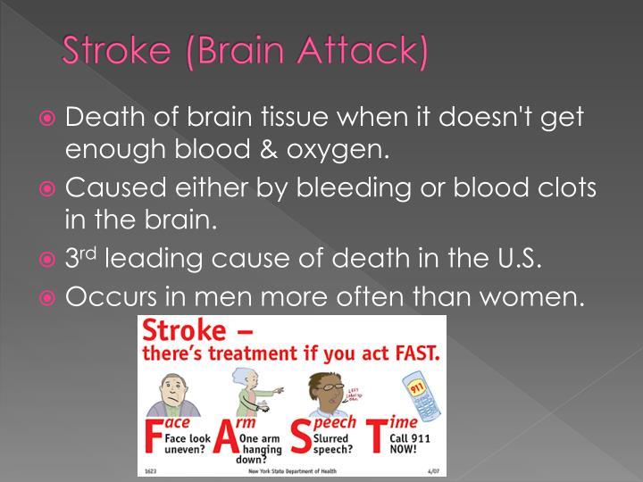 Stroke (Brain Attack)