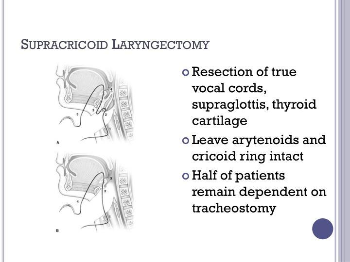 Supracricoid Laryngectomy