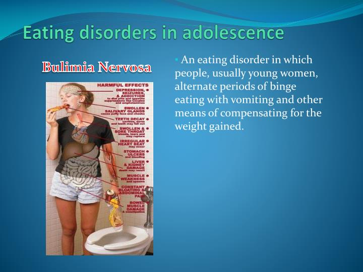 Eating disorders in adolescence
