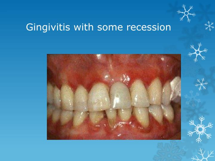 Gingivitis with some recession