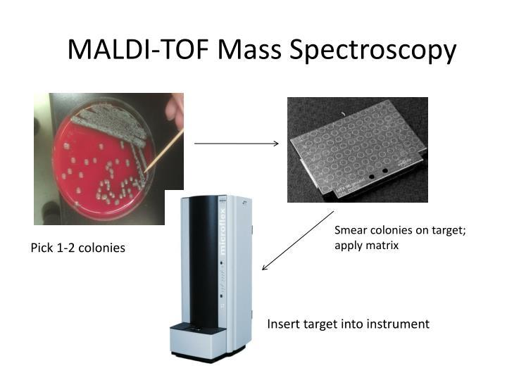 MALDI-TOF Mass Spectroscopy