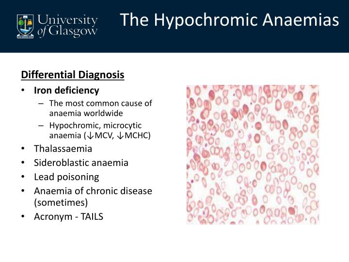 The Hypochromic