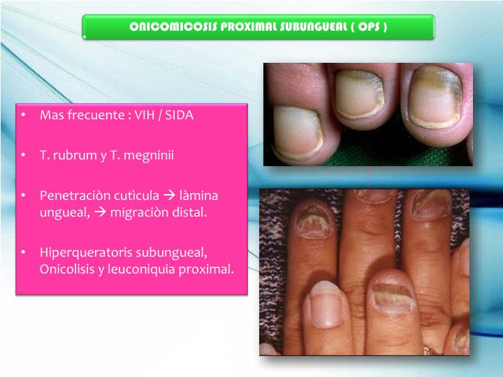 ONICOMICOSIS PROXIMAL SUBUNGUEAL ( OPS )