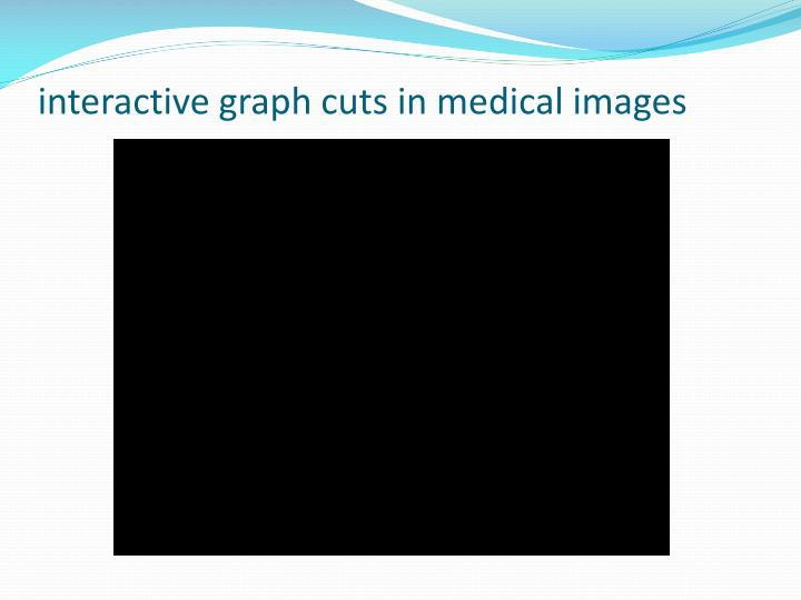 interactive graph cuts in medical images