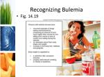 recognizing bulemia
