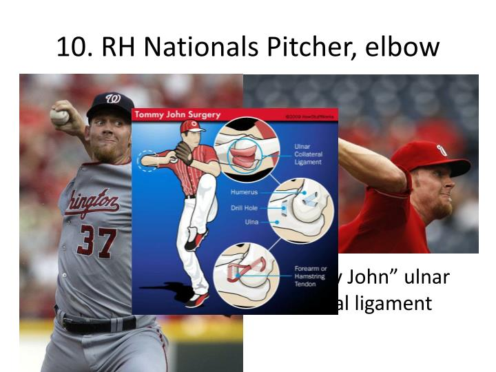 10. RH Nationals Pitcher, elbow