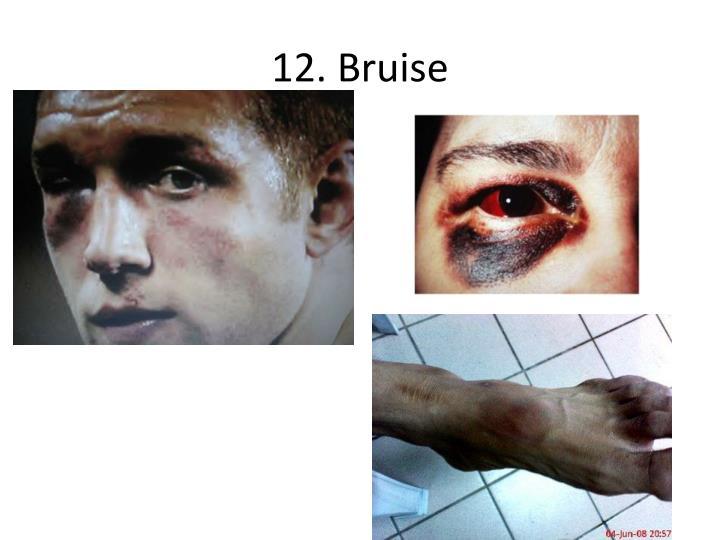 12. Bruise