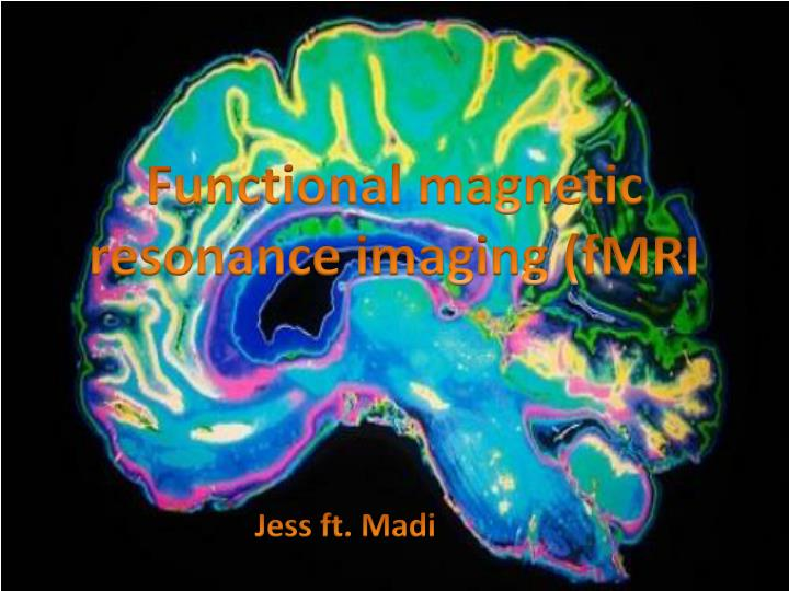 F unctional magnetic resonance imaging fmri