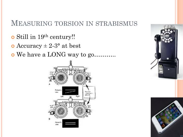 Measuring torsion in strabismus