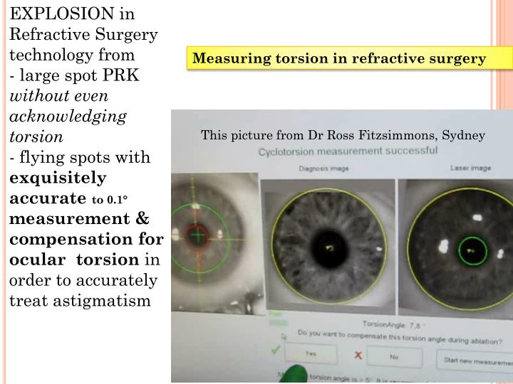 EXPLOSION in Refractive Surgery  technology from