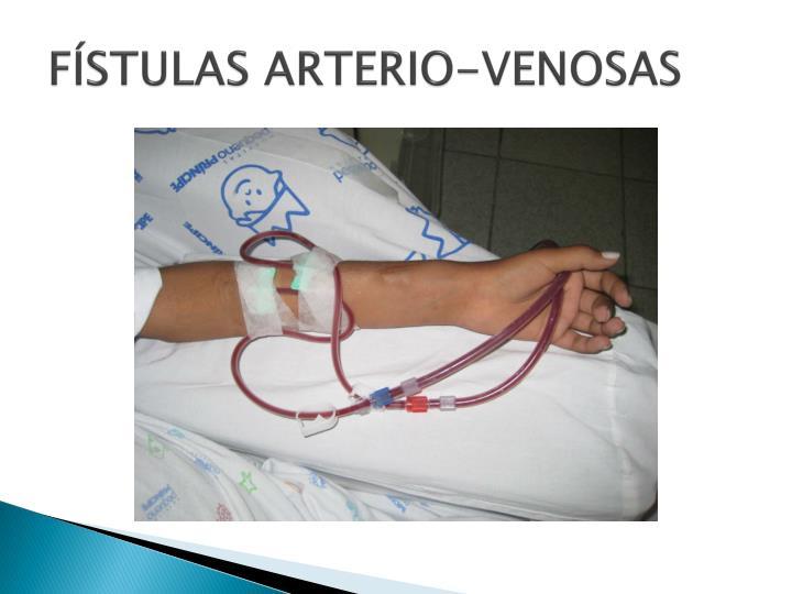 FÍSTULAS ARTERIO-VENOSAS