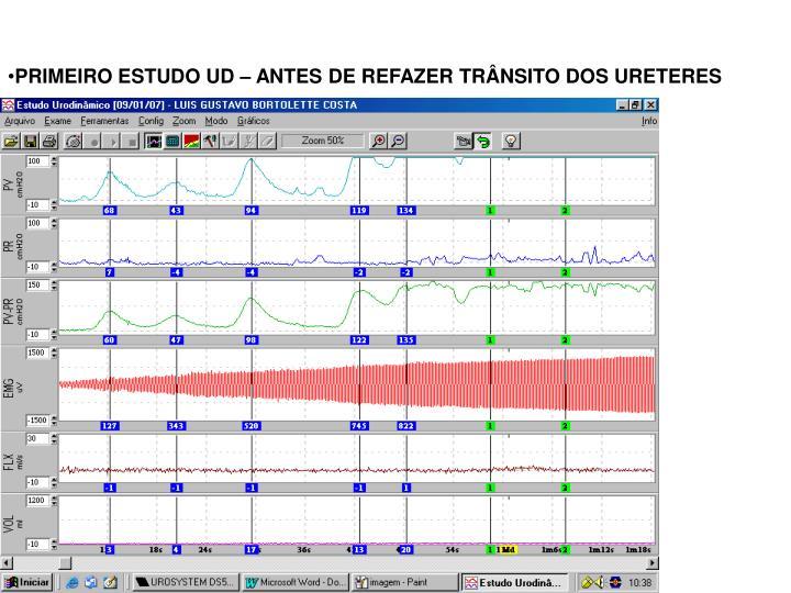 PRIMEIRO ESTUDO UD – ANTES DE REFAZER TRÂNSITO DOS URETERES