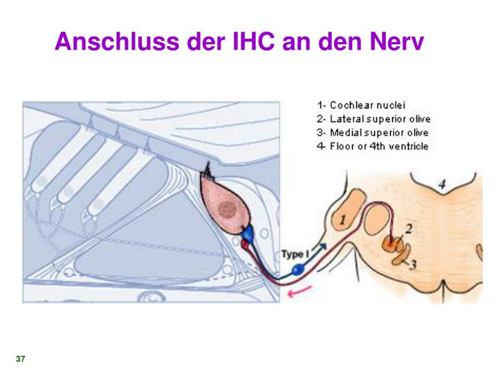 Anschluss der IHC an den Nerv