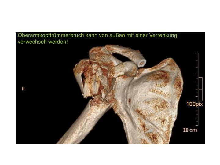 Oberarmkopftrümmerbruch kann von außen mit einer Verrenkung