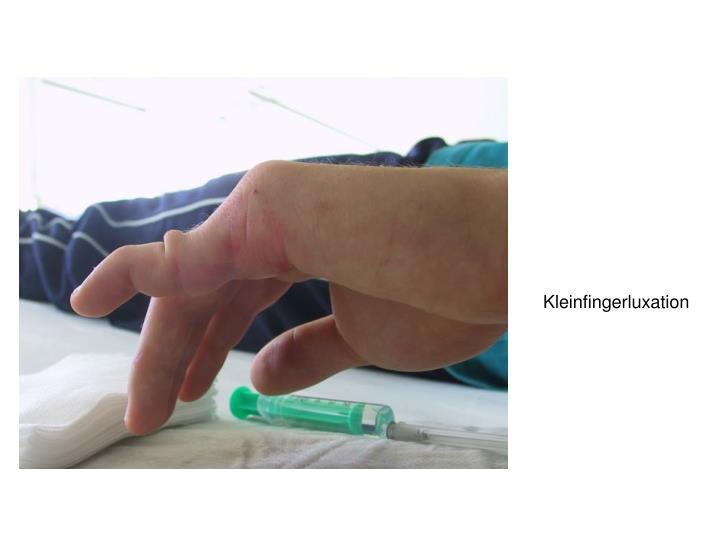 Kleinfingerluxation