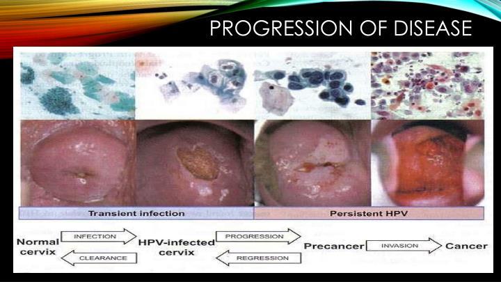Progression of Disease