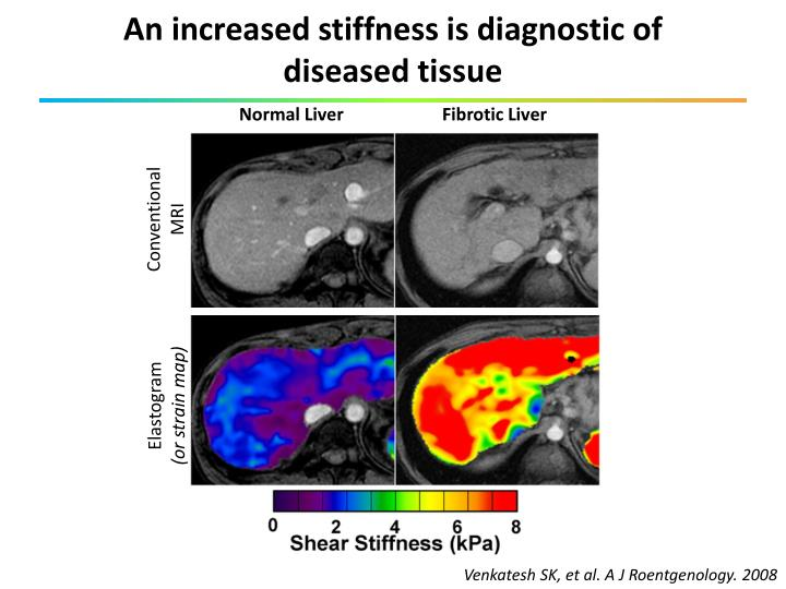 An increased stiffness is diagnostic of