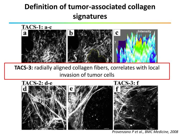 Definition of tumor-associated collagen signatures