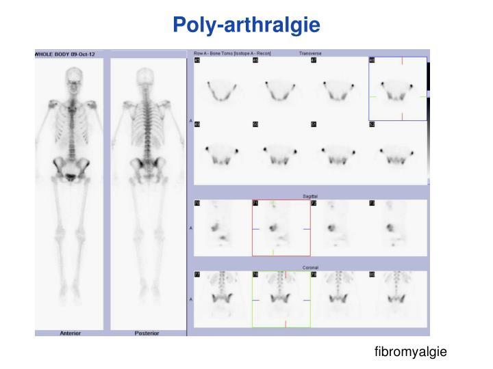 Poly-arthralgie