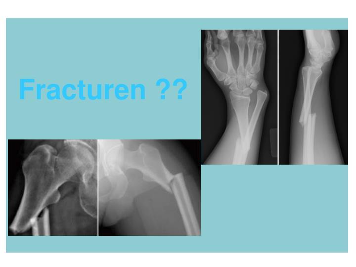 Fracturen ??