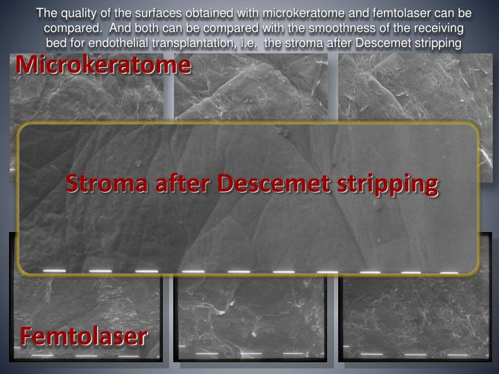 The quality of the surfaces obtained with microkeratome and femtolaser can