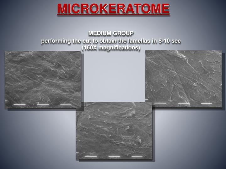 MICROKERATOME