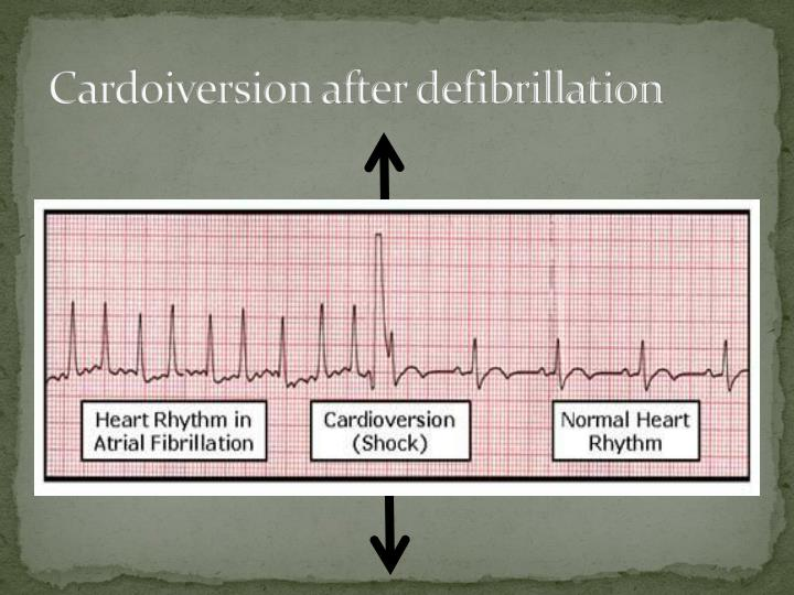 Cardoiversion after defibrillation