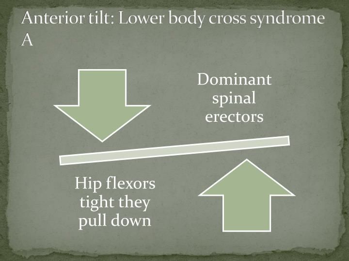 Anterior tilt: Lower body cross syndrome A