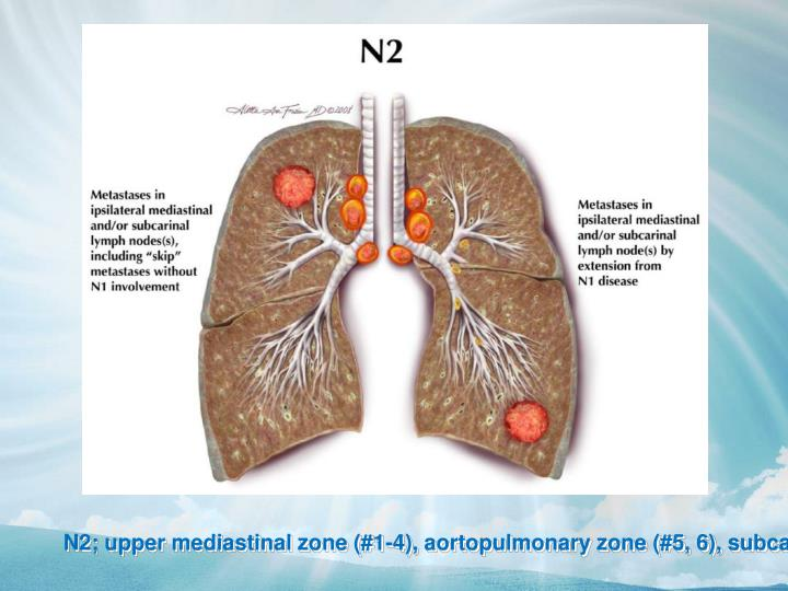 N2; upper mediastinal zone (#1-4), aortopulmonary zone (#5, 6), subcarinal zone (#7), lower mediastinal zone (#8, 9)
