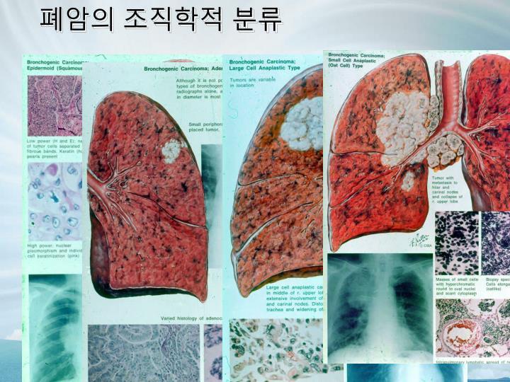 폐암의 조직학적 분류