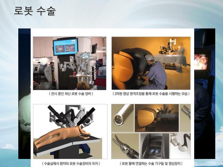 로봇 수술