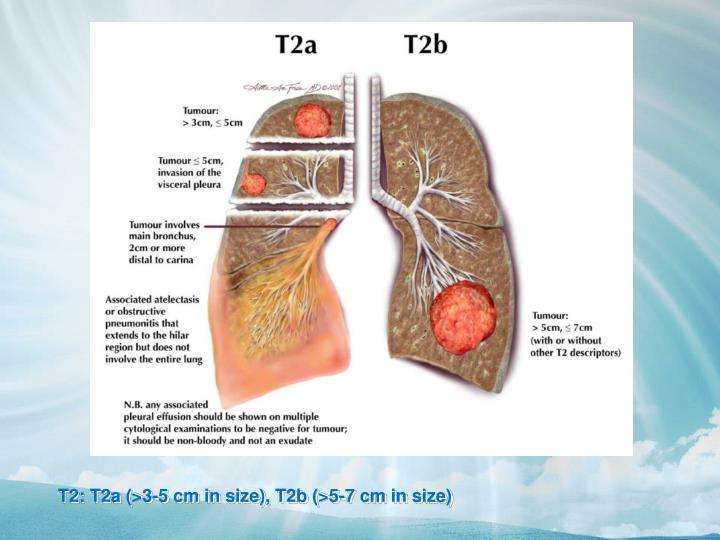 T2: T2a (>3-5 cm in size), T2b (>5-7 cm in size)
