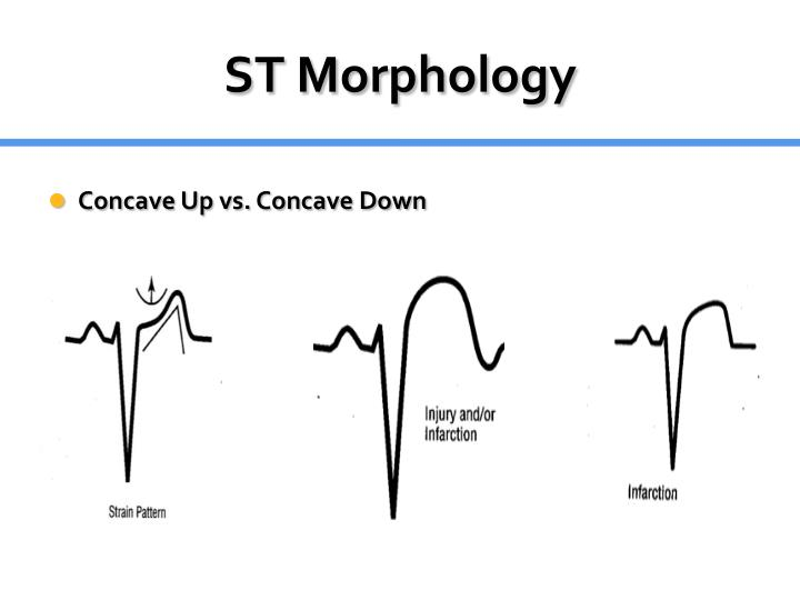ST Morphology