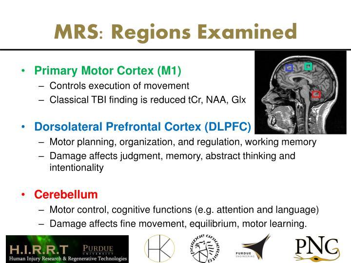 MRS: Regions Examined