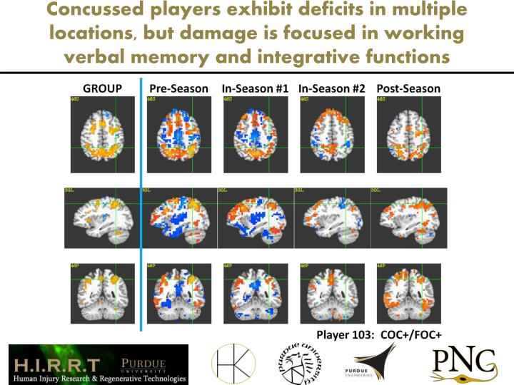 Concussed players exhibit deficits in multiple locations, but damage is focused in working verbal memory and integrative functions